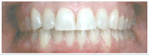 PD10-031_Overbite_After_large