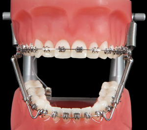 Braces Appliances Kujak Ortho